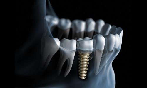 implant-500300